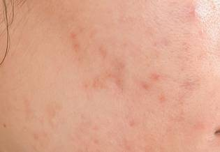 Larocheposay ArticlePage Acne How to get rid of scars and marks