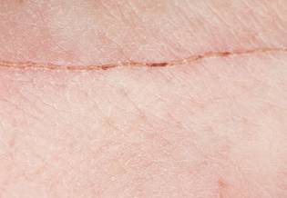 Larocheposay ArticlePage Damaged How to optimise scar healing