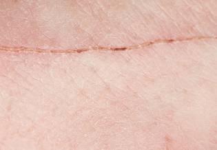 Larocheposay ArticlePage Damaged How to optimise scar healing