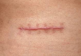 Larocheposay ArticlePage Damaged Scar from stitches How to prevent it