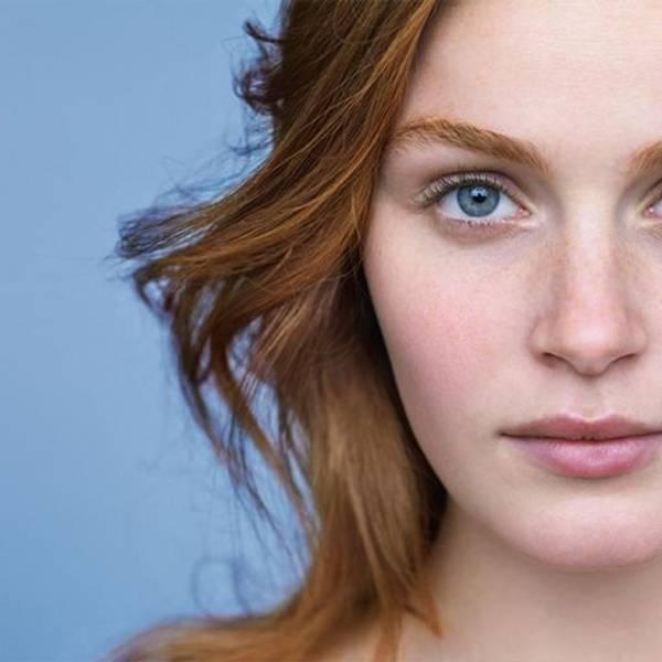 Articolo pelle a tendenza acneica - immagine principale